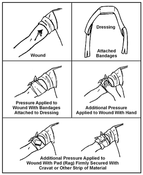 Dressing a bleeding would with direct pressure dressing