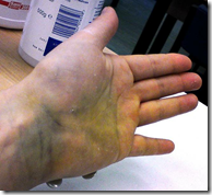 Bruising and swelling can indicate a fractured bone