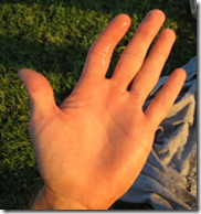 A dislocated index finger